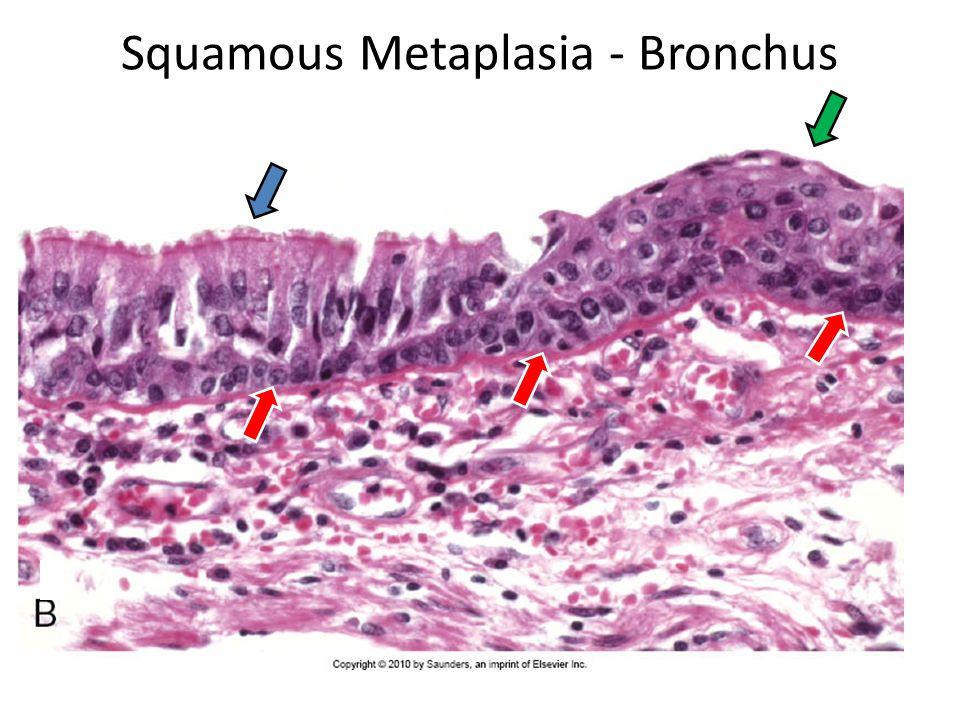 Squamous Metaplasia - Bronchus