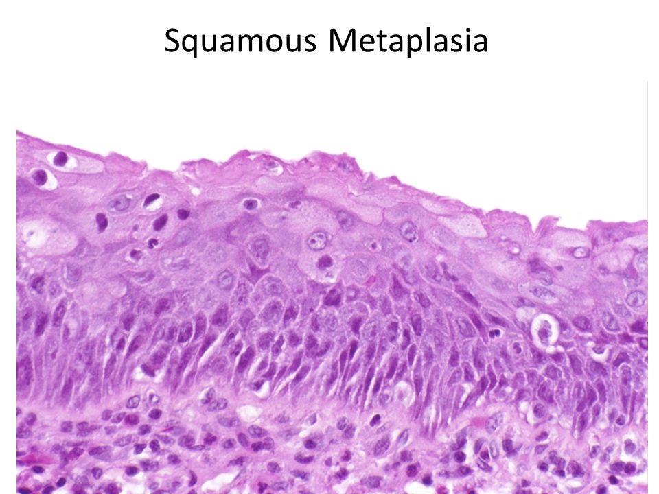 Squamous Metaplasia
