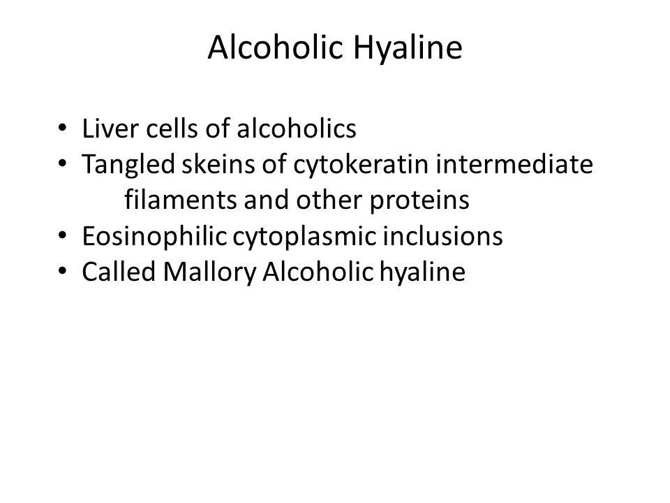 Alcoholic Hyaline Intracellular Proteins Liver cells of alcoholics
