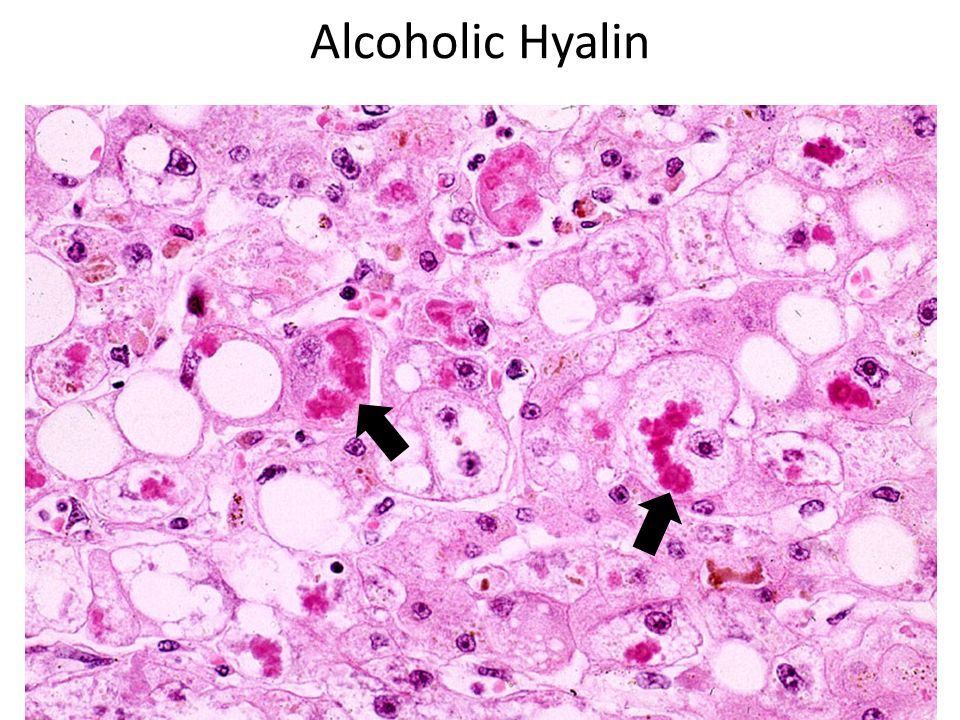 Alcoholic Hyalin