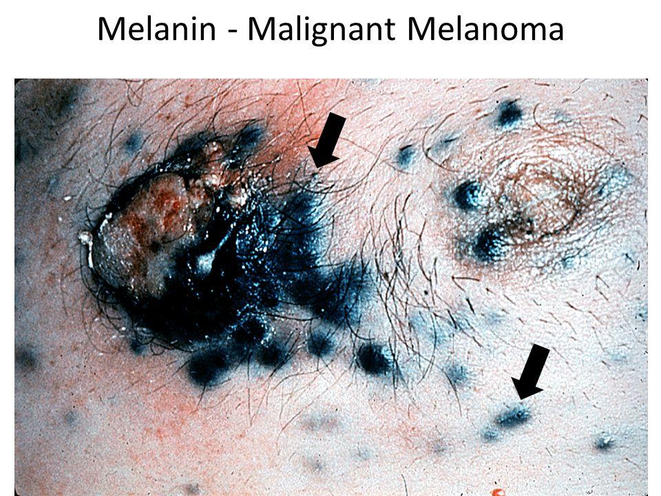 Melanin - Malignant Melanoma