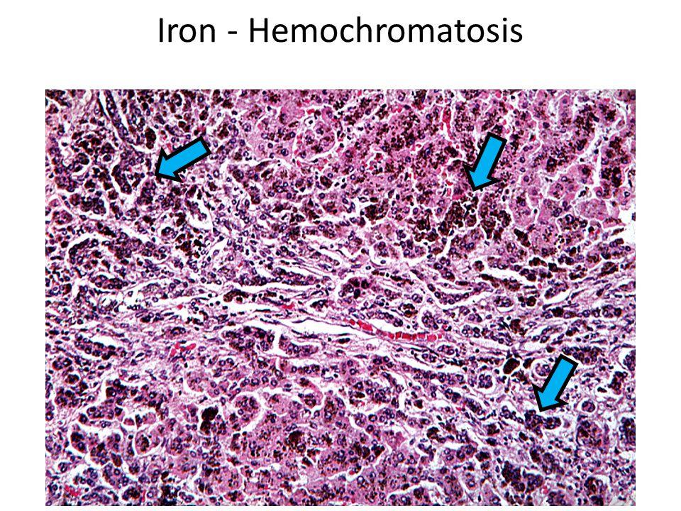 Iron - Hemochromatosis