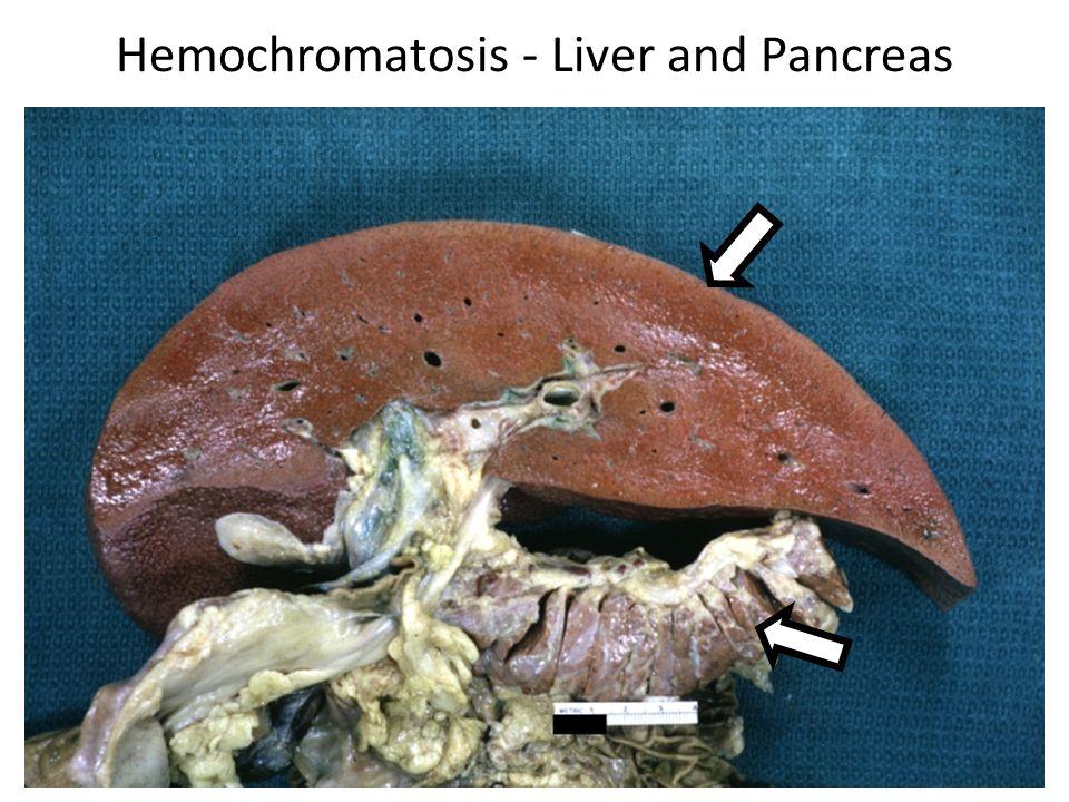 Hemochromatosis - Liver and Pancreas