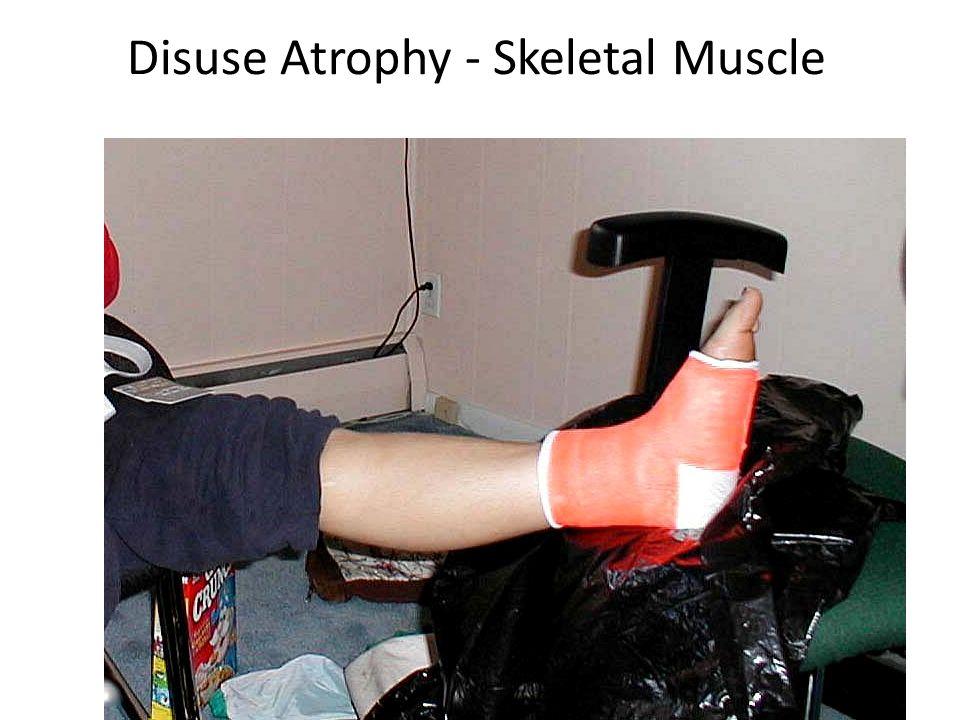 Disuse Atrophy - Skeletal Muscle