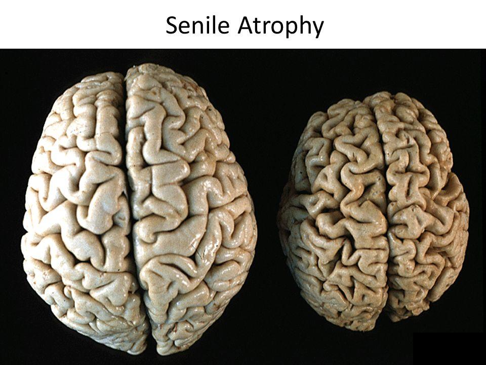Senile Atrophy