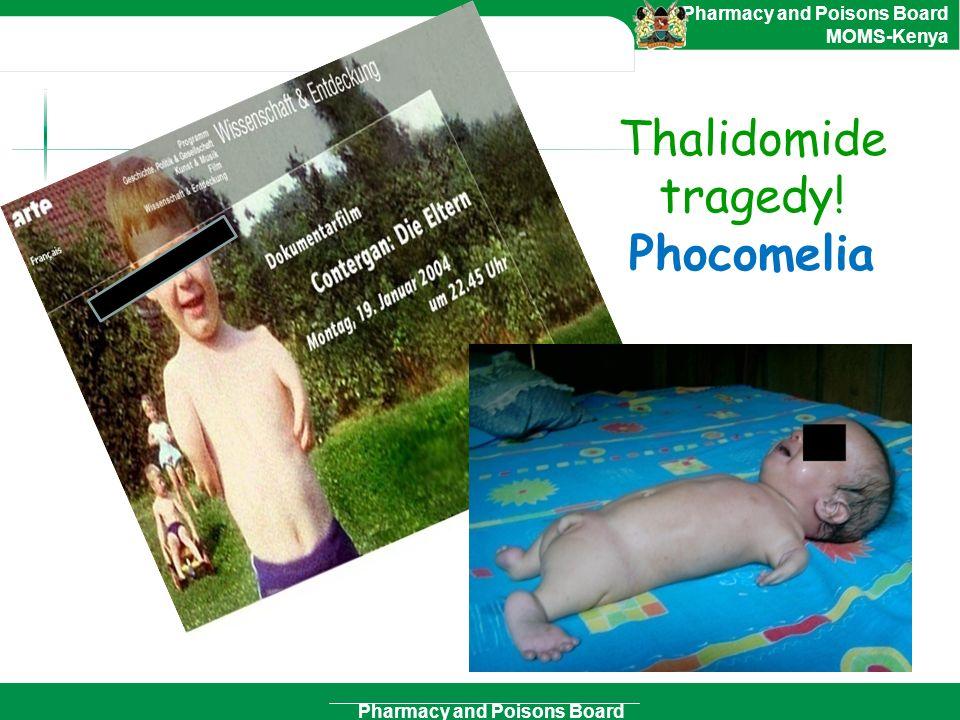 Thalidomide tragedy! Phocomelia