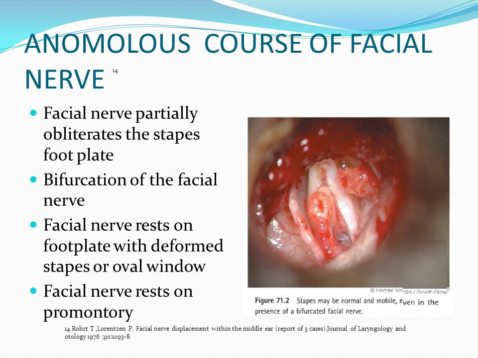 MIDDLE EAR CONGENITAL MALFORMTION - ppt video online download
