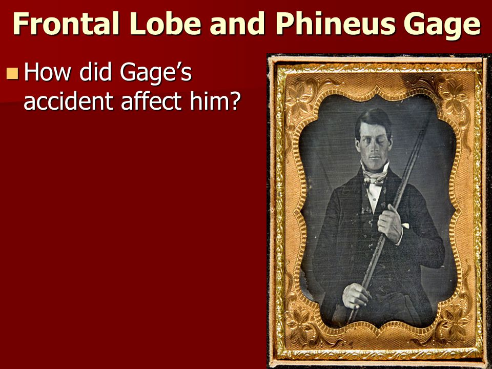 Frontal Lobe and Phineus Gage