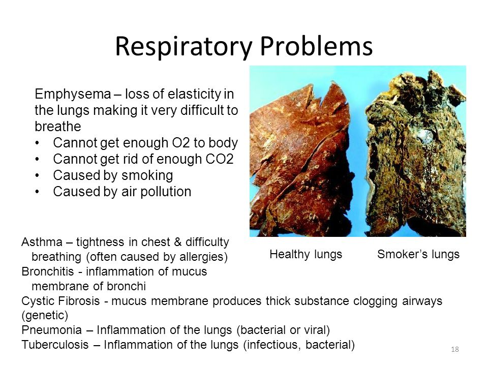 Respiratory Problems Emphysema – loss of elasticity in the lungs making it very difficult to breathe.