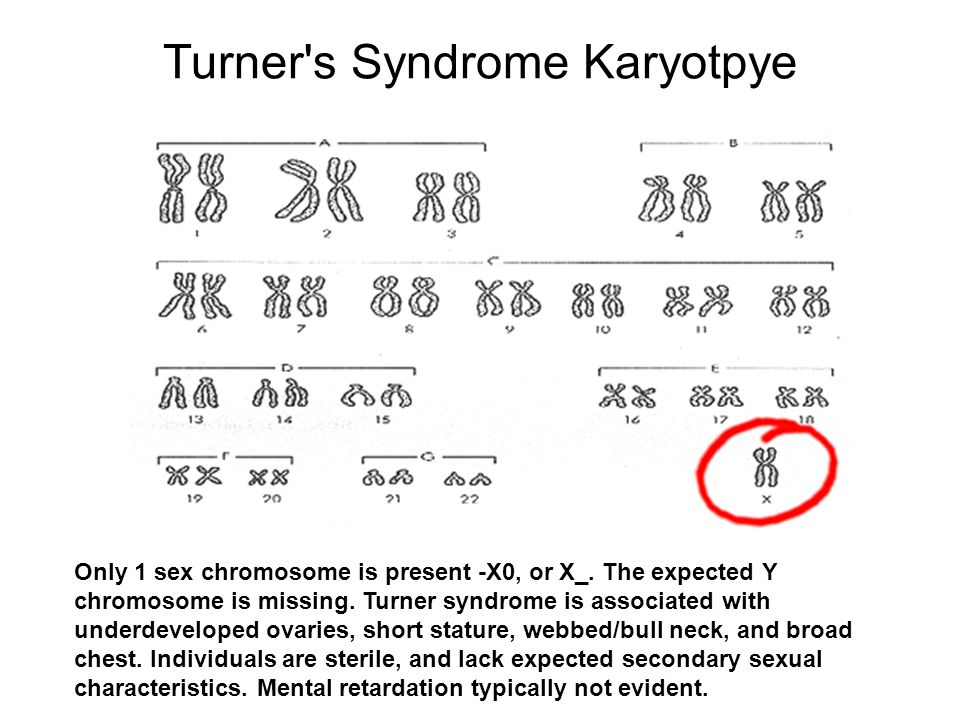 Turner s Syndrome Karyotpye