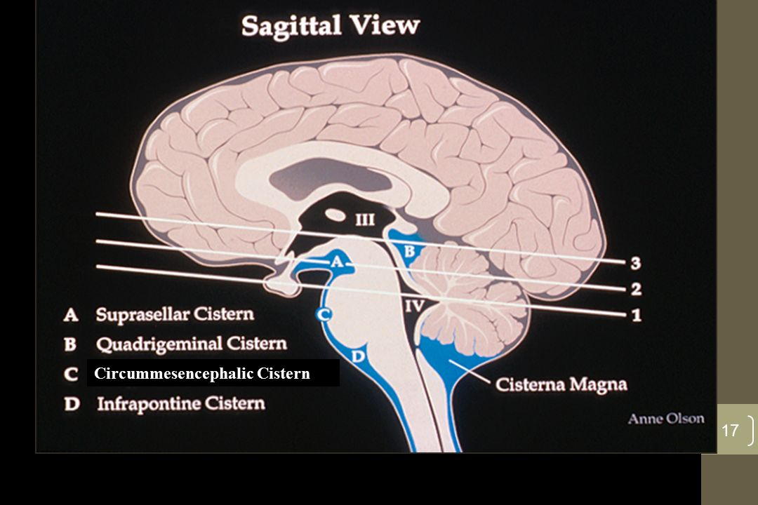 2nd Key Level Sagittal View