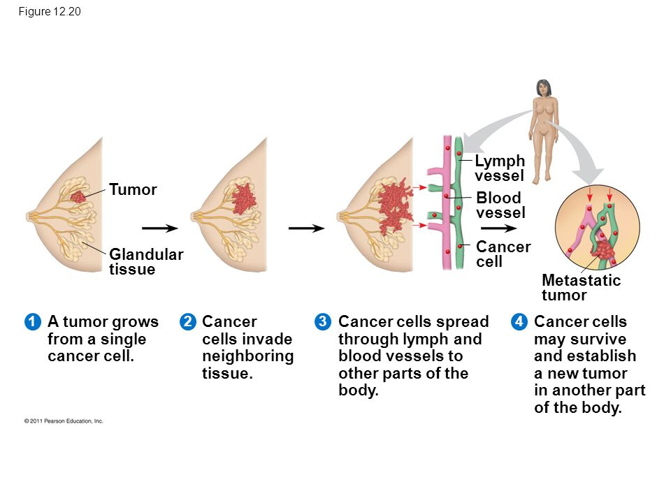 A tumor grows from a single cancer cell.