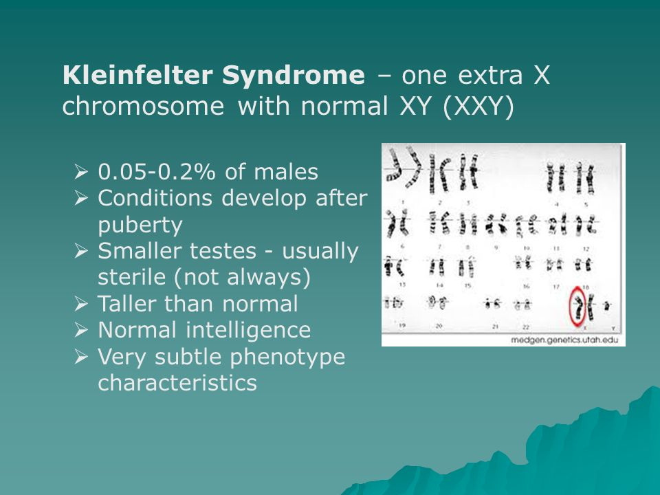 Kleinfelter Syndrome – one extra X chromosome with normal XY (XXY)
