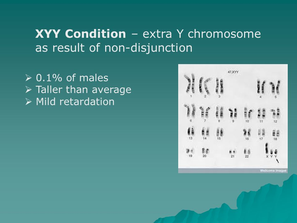 XYY Condition – extra Y chromosome as result of non-disjunction