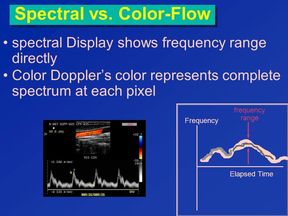 Display of Motion & Doppler Ultrasound - ppt video online ...