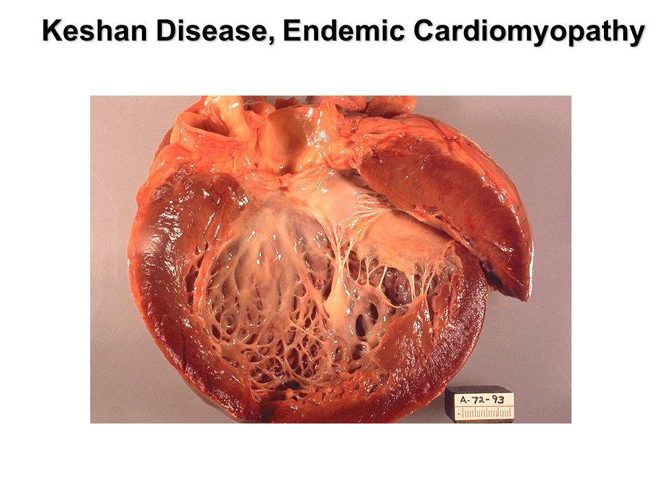 Keshan Disease, Endemic Cardiomyopathy