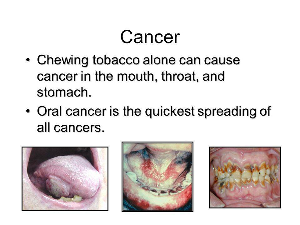 Cancer Chewing tobacco alone can cause cancer in the mouth, throat, and stomach.