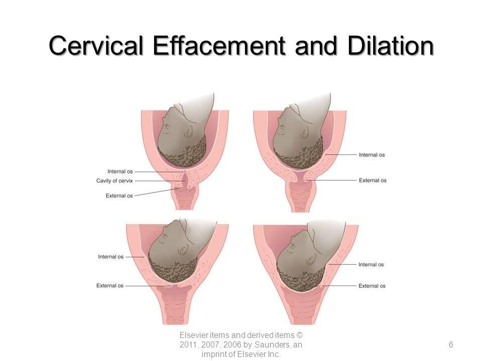 Nursing care of mother and infant during labor and birth ppt video cervical effacement and dilation ccuart Gallery