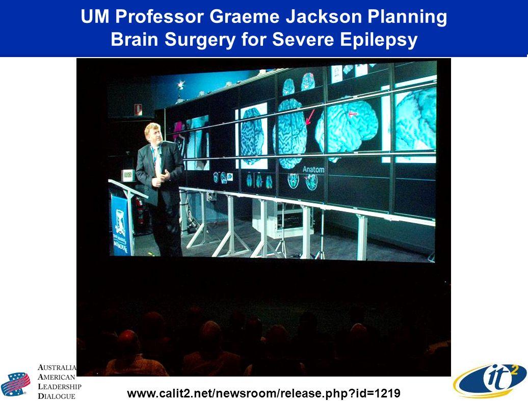 UM Professor Graeme Jackson Planning Brain Surgery for Severe Epilepsy