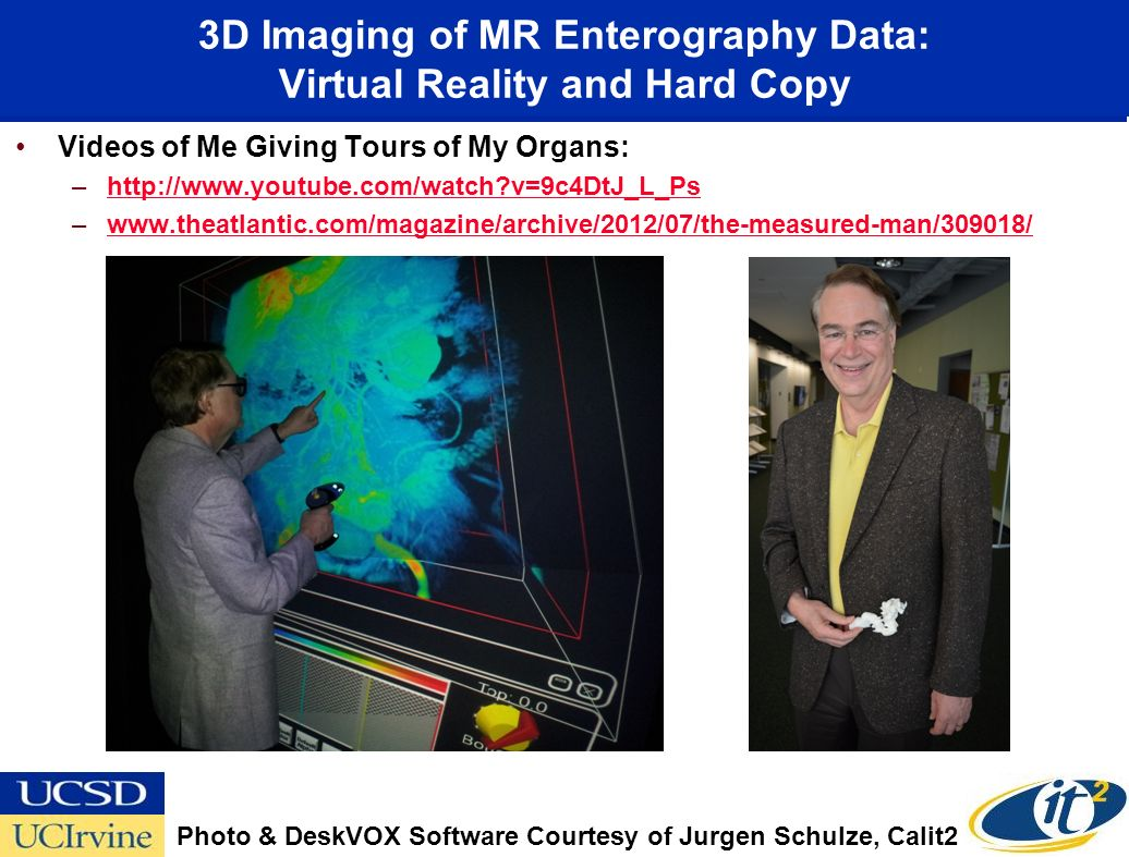 3D Imaging of MR Enterography Data: Virtual Reality and Hard Copy