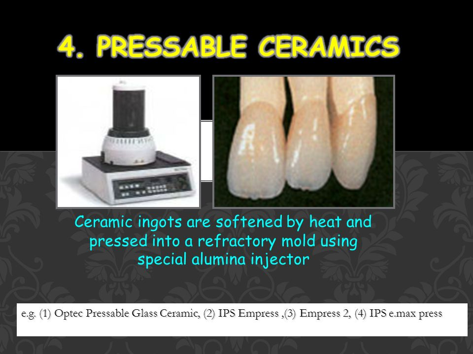 Dental Ceramics Kuo Lung Tung Ppt Video Online Download