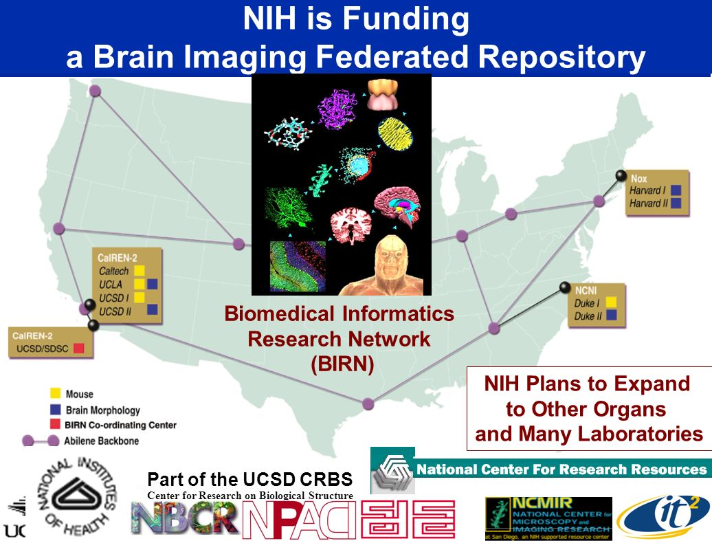 NIH is Funding a Brain Imaging Federated Repository
