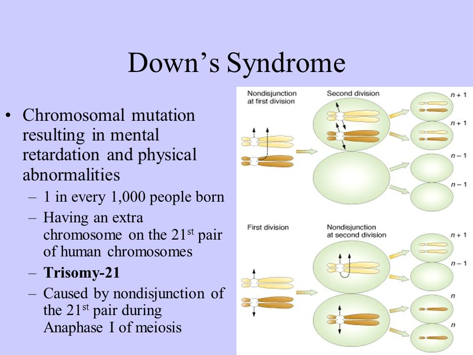 Down's Syndrome Chromosomal mutation resulting in mental retardation and physical abnormalities. 1 in every 1,000 people born.