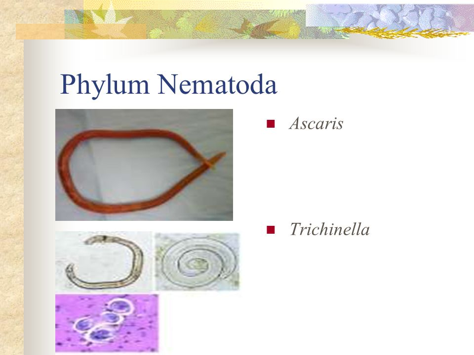 Phylum Nematoda Ascaris Trichinella