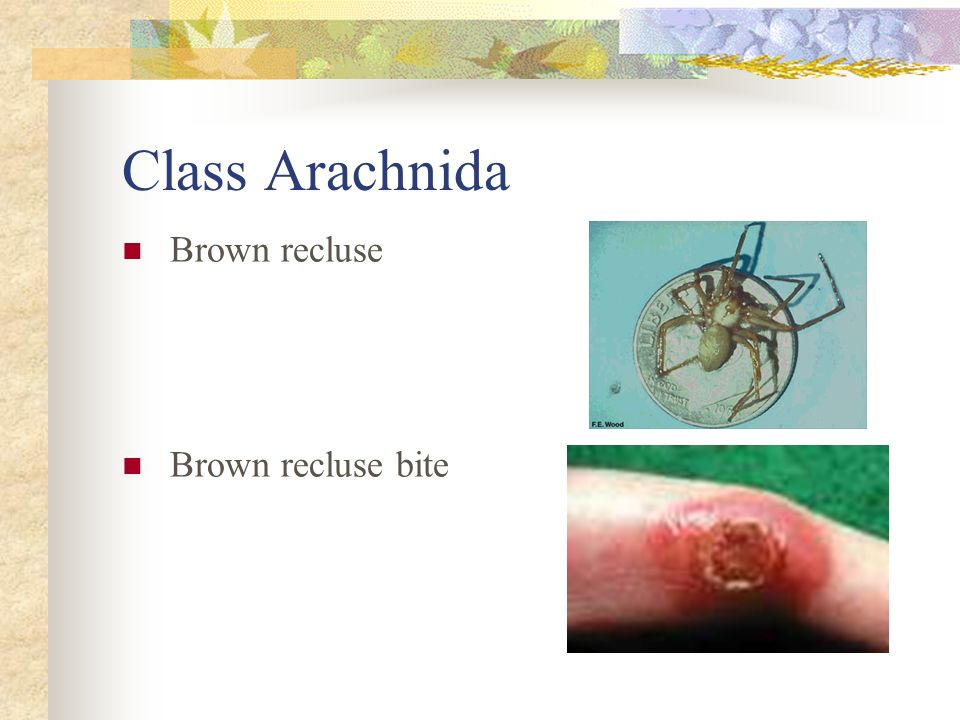 Class Arachnida Brown recluse Brown recluse bite