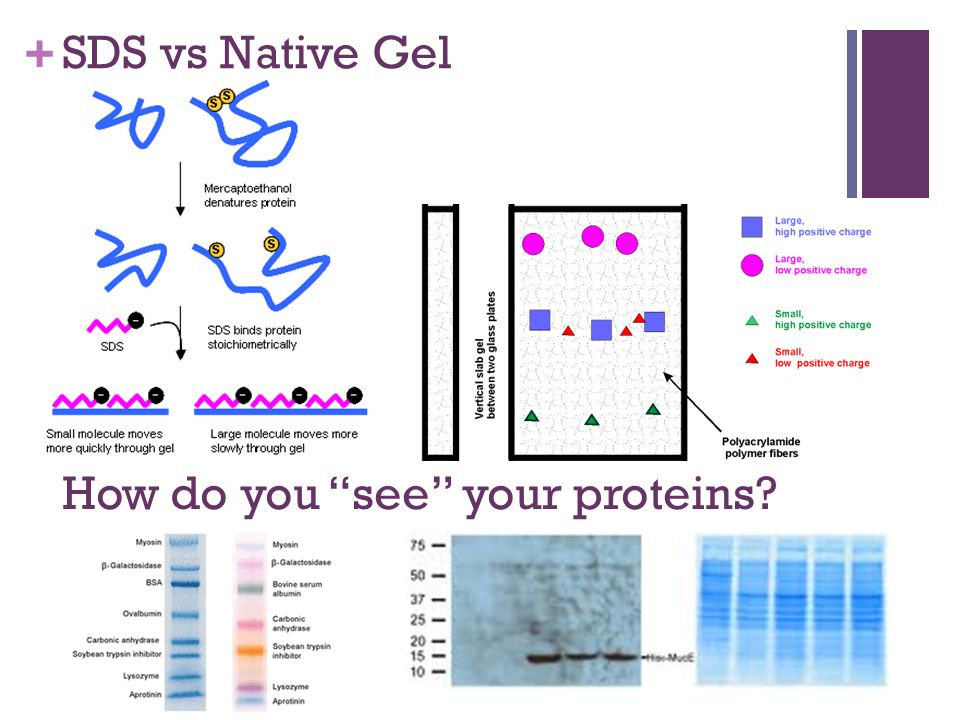 a lab analysis of sds page Figure 1: sds-page followed by western blotting of normal and tumor cells figure 1: western blot analysis was performed as described in the materials and methods.