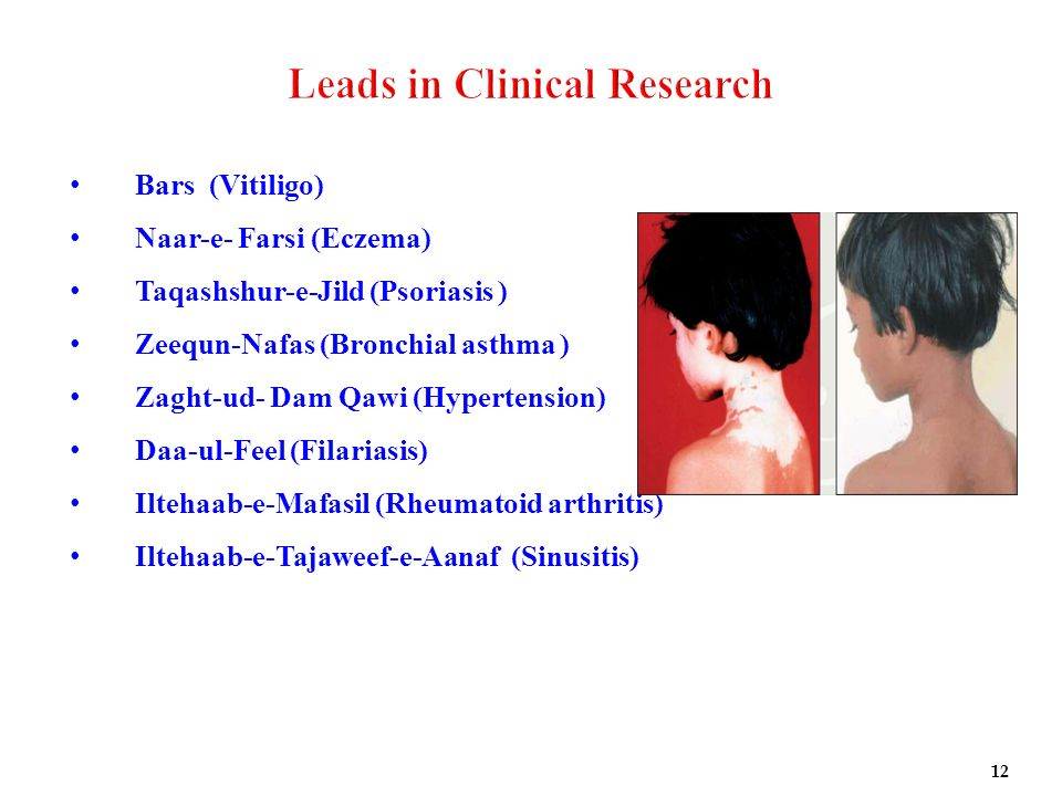 Leads in Clinical Research