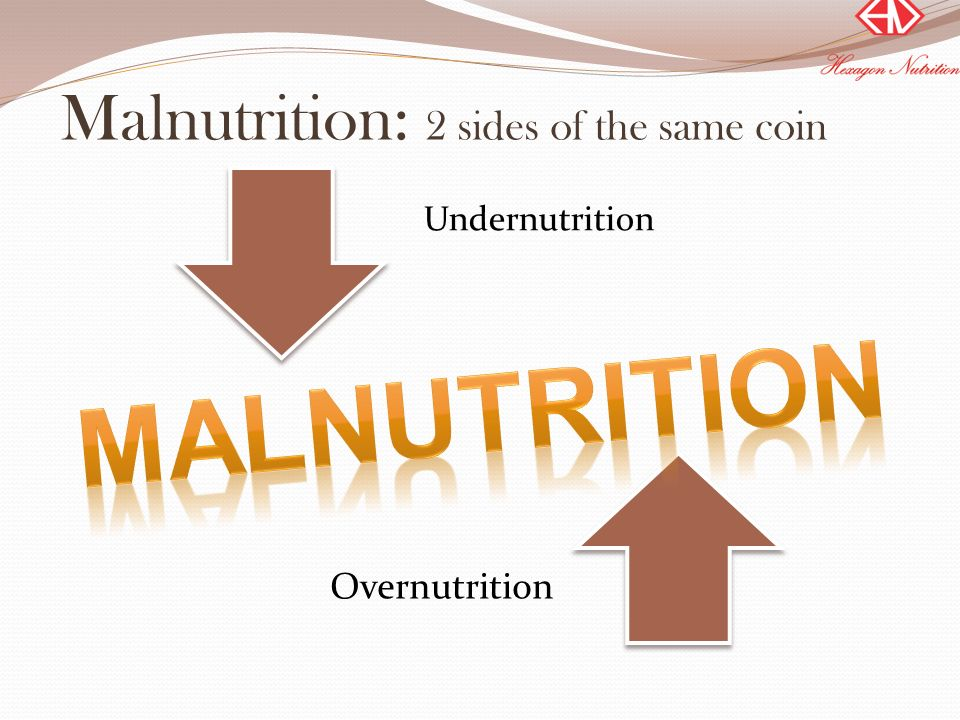 Malnutrition: 2 sides of the same coin
