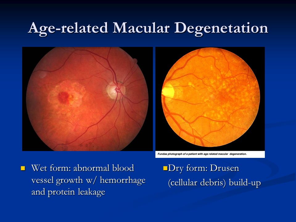 Direct ophthalmoscopy ppt video online download