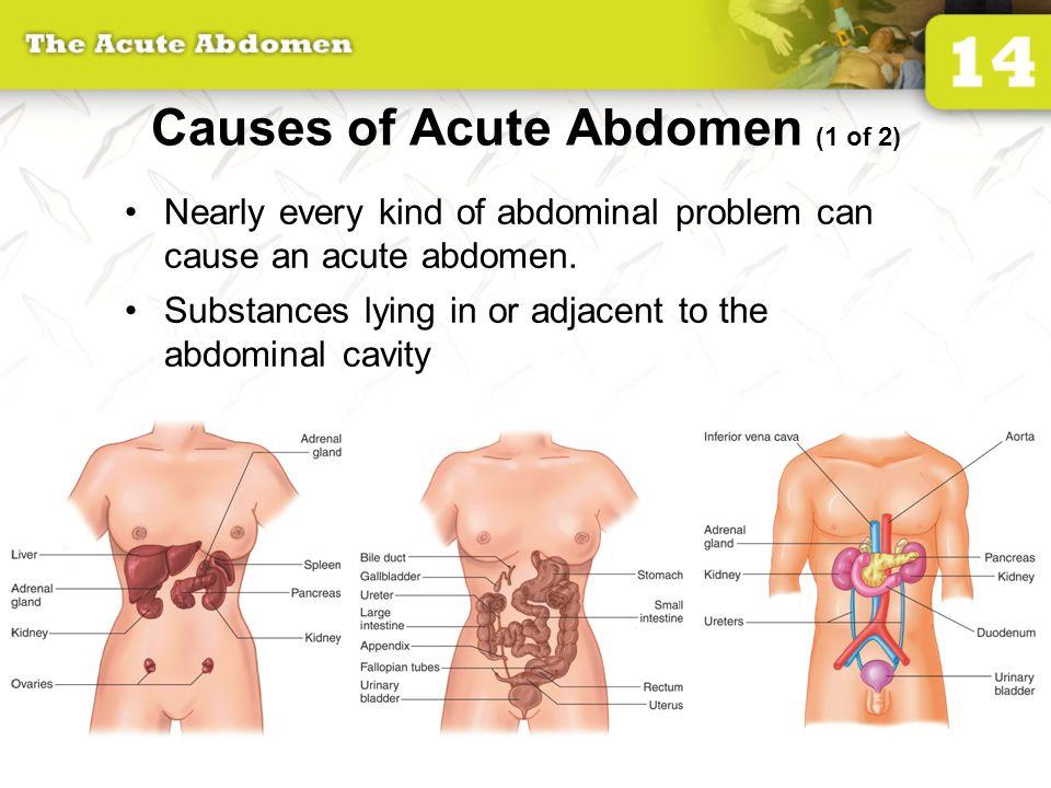 14: The Acute Abdomen.