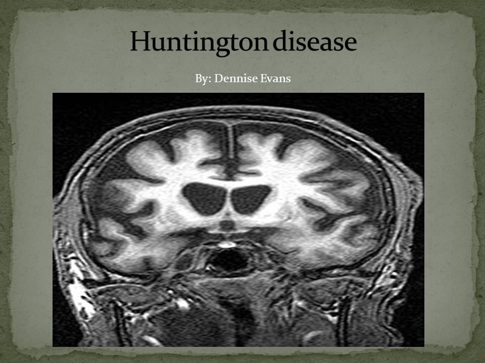 Huntington disease By: Dennise Evans. - ppt video online download