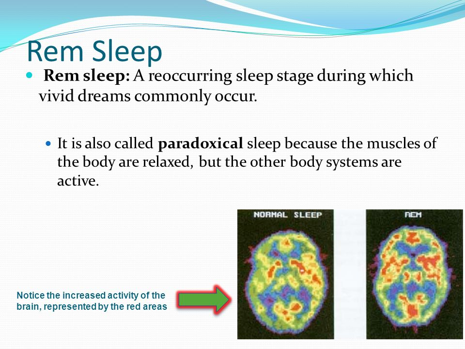 brain activity during sleep Reporting in the journal sleep, the group found that the insomniacs showed enhanced brain activity compared to the good sleepers in fact, those with insomnia showed more plasticity in picking up the new task.