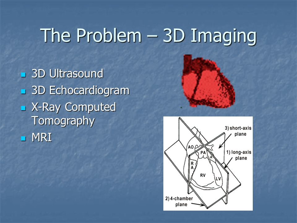 The Problem – 3D Imaging 3D Ultrasound 3D Echocardiogram