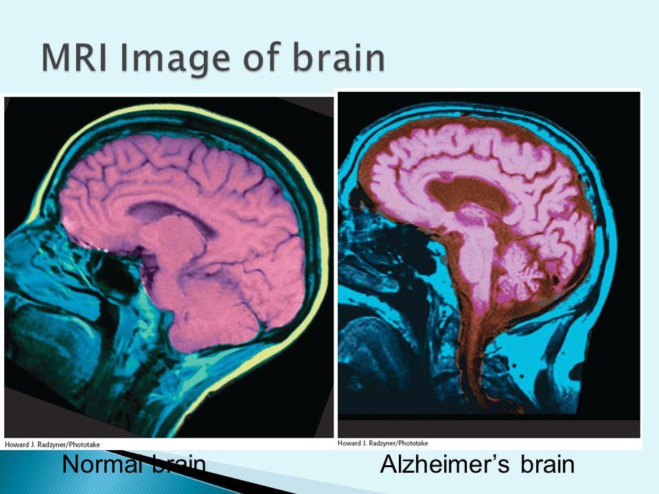 Alzheimer S Naturally