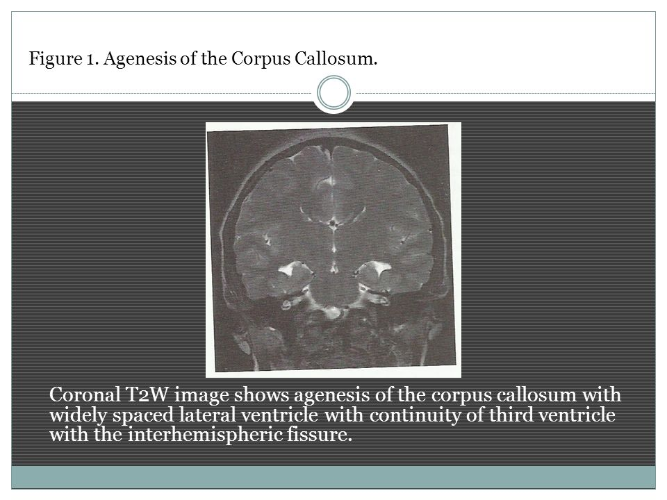 Figure 1. Agenesis of the Corpus Callosum.