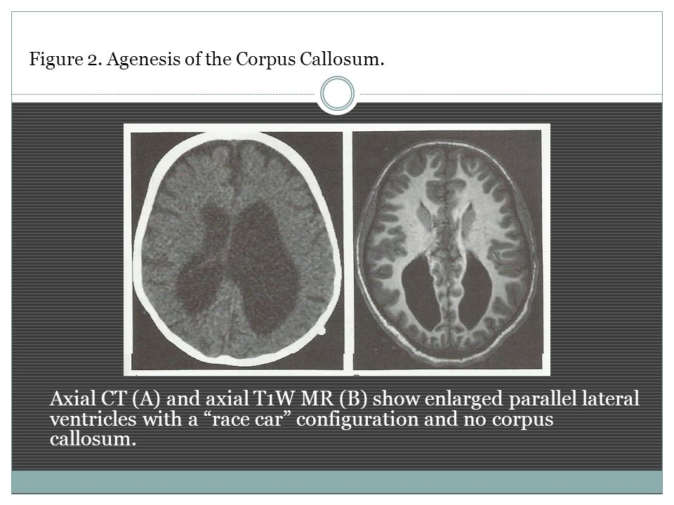 Figure 2. Agenesis of the Corpus Callosum.