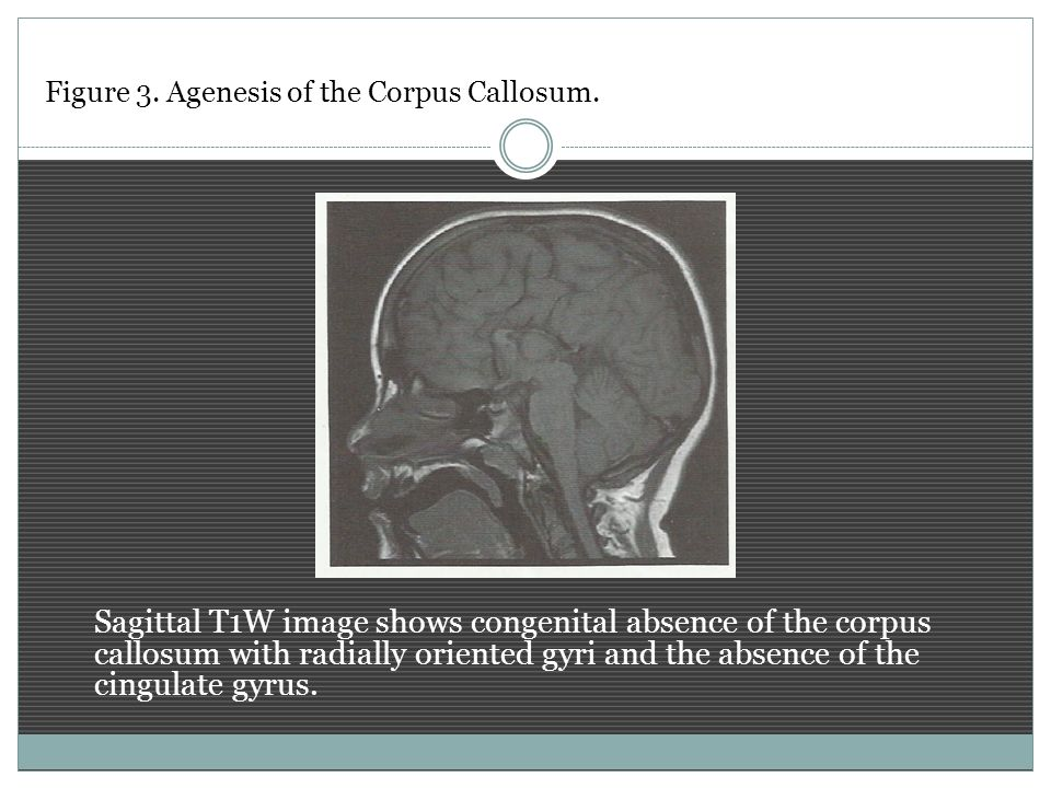 Figure 3. Agenesis of the Corpus Callosum.