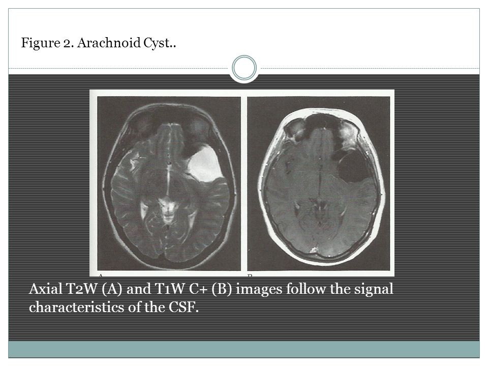 Axial T2W (A) and T1W C+ (B) images follow the signal