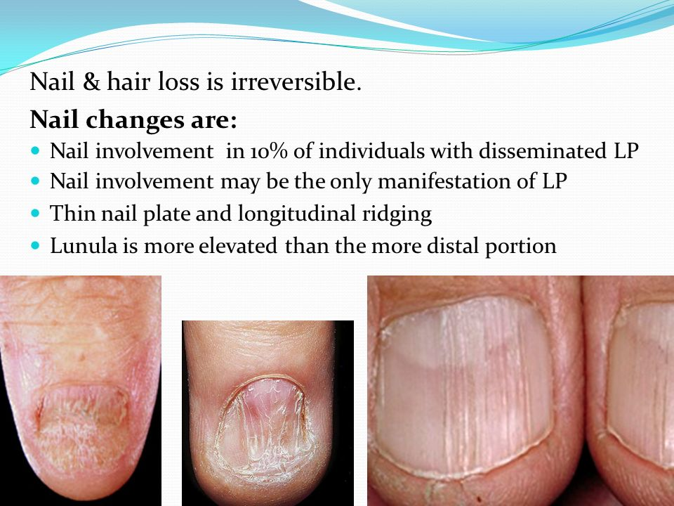 Lichen planus and related conditions ppt video online download 8 nail hair sciox Image collections