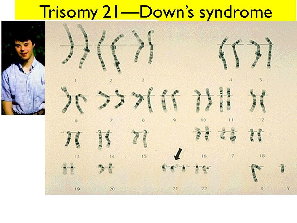 Trisomy 21—Down's syndrome
