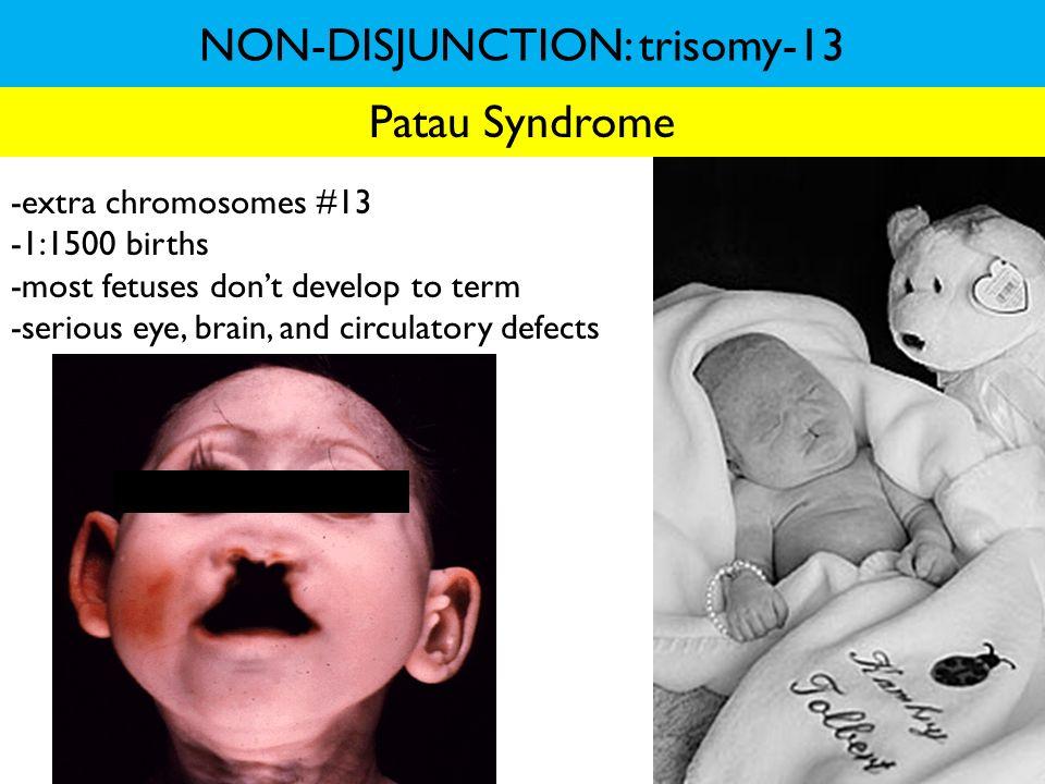 NON-DISJUNCTION: trisomy-13