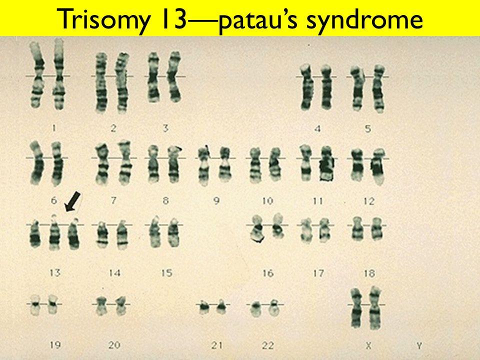 Trisomy 13—patau's syndrome