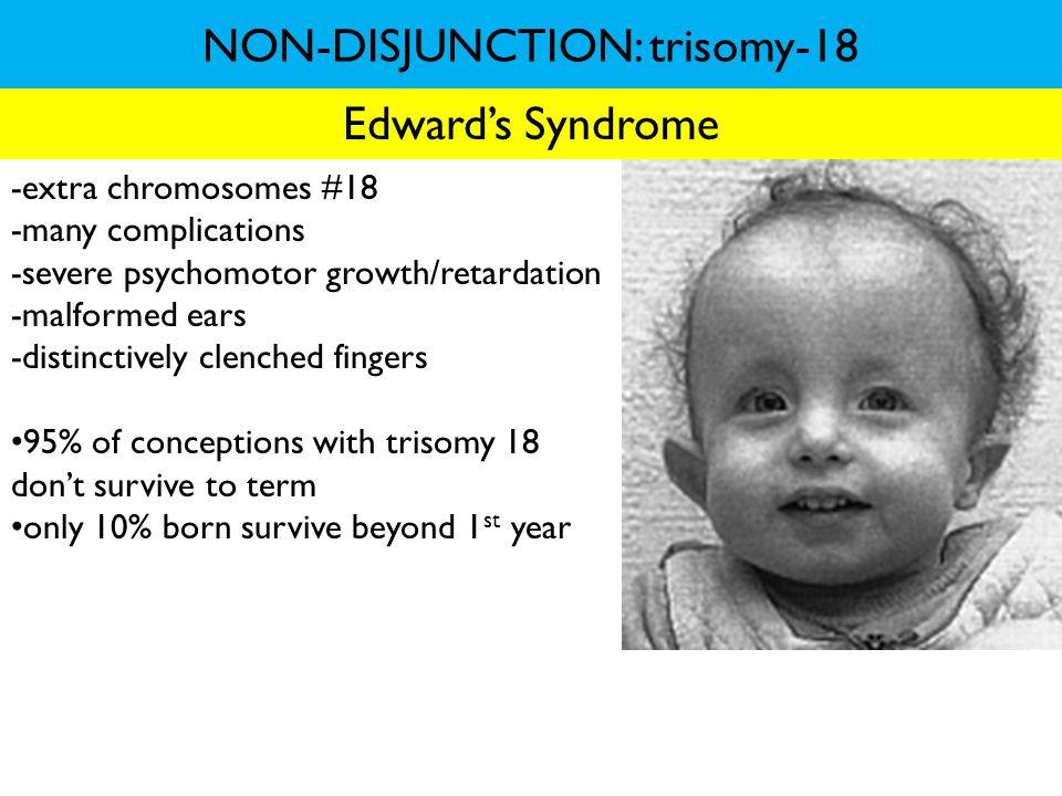 NON-DISJUNCTION: trisomy-18