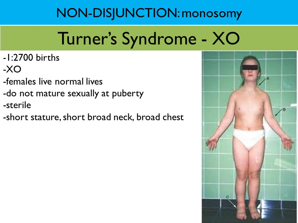 NON-DISJUNCTION: monosomy