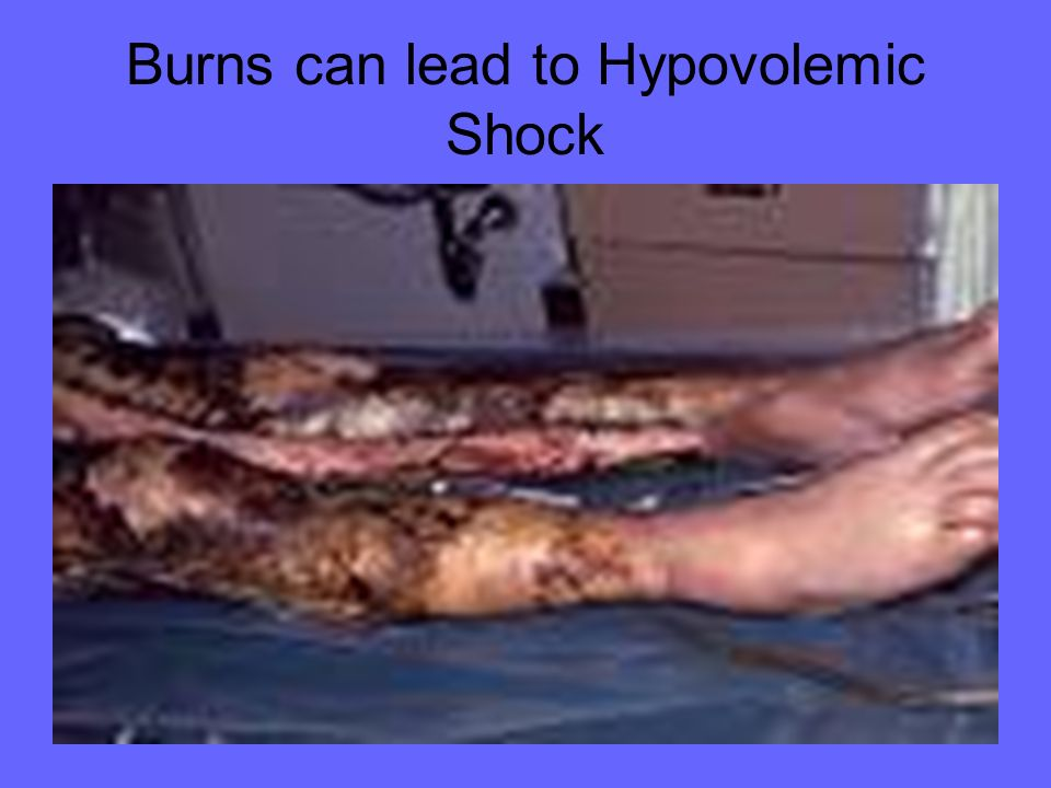 Burns can lead to Hypovolemic Shock