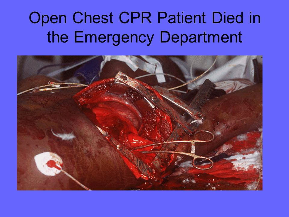 Open Chest CPR Patient Died in the Emergency Department